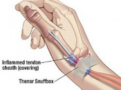 DeQuervain's Syndrome is a painful condition affecting tendons where the wrist and thumb meet.