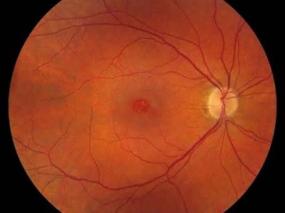 Macular hole, center, disrupts light and causes distortion and blurred vision.