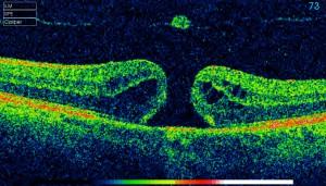 Macular hole image using ultrasound.