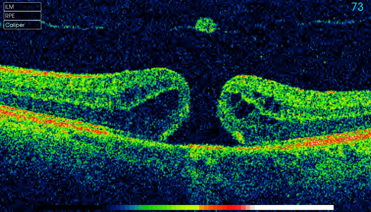 serous retinopathy steroids