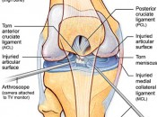 knee_arthroplasy-01